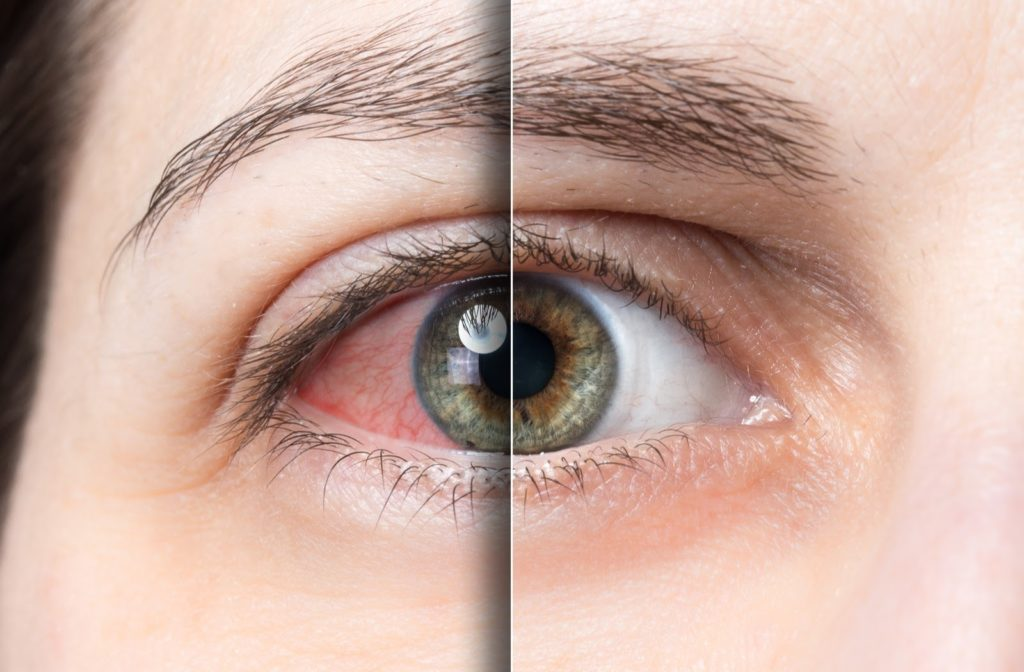 Close up of dry eye comparison on the left compared to normal eye on the right side.